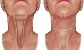 Как подтянуть мышцы шеи и убрать второй подбородок 1