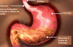 Dieta adequada para pessoas com refluxo