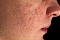 Acne scars are formed as part of the skin's healing process. Learn how to prevent and get rid of acne scars. Read more: http://blog.metrin.com/skincare/how-to-prevent-and-fade-acne-scars