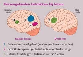 Google Afbeeldingen resultaat voor https://www.hersenstichting.nl/dyn_content/tiny/afbeeldingen/aandoeningen/dyslexie_goed-vs-dyslexie.jpg