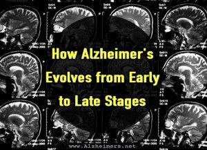 How Alzheimer's Evolves from Early to Late Stages #caregiving #caregivers info #alzheimers