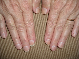Check out Linda's transformation from breaking, weak nails to stronger, healthier, faster-growing talons in 8 weeks.  #nails, #nailcare, #cuticles, #beauty, #cosmetics.  www.askcosmetics.com