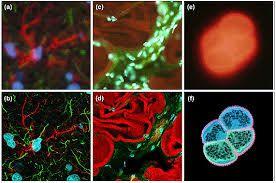 Micrografía electrónica de barrido fagocitosis - Buscar con Google