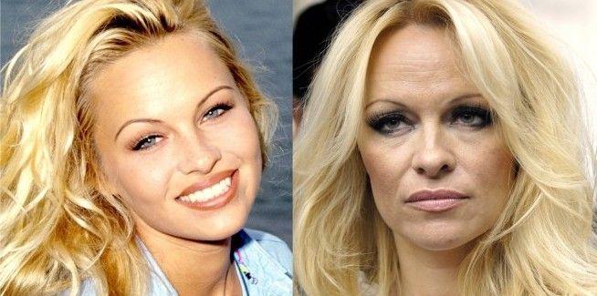 Pamela Anderson Then Amp Now I M A G E S Bad Plastic