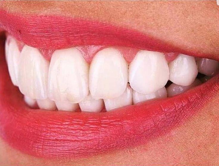 هشت واحد ونیر کامپوزیت #dental #dentist #dentistry #cosmetics #cosmetic_dentistry #prosthetics #fixed_prosthesis #implants #endo #orthodontics #bleaching #laminate #laminate_veneers #ceramic_veneer #gold_veneer #composite #veneers_smile #toothache #dentalassistant #follow4follow #extractions #dentalsurgery #3rdmolarsurgery