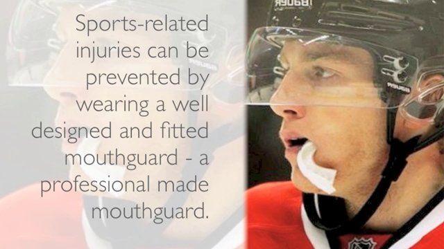 Dentist Brisbane: Why Are Mouthguards Important?  Visit us on http://dentalonpark.com.au