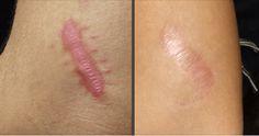 Quem não tem ou nunca teve cicatrizes?Cicatrizes tem bordas salientes e uma tonalidade de cor diferente da pele natural.Geralmente elas não doem, mas mexem com a autoestima das pessoas.