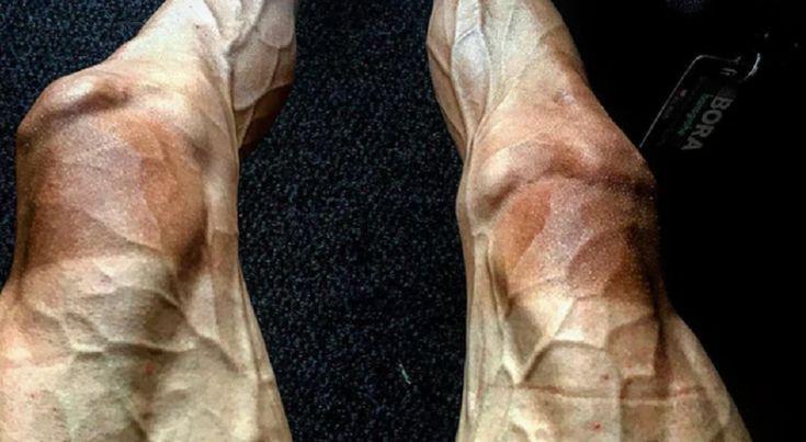 Biliyor muydun ? /// Bisikletçi Pawel Poljanski'nin Tour de France'dan Sonrası Bacak Fotoğrafı