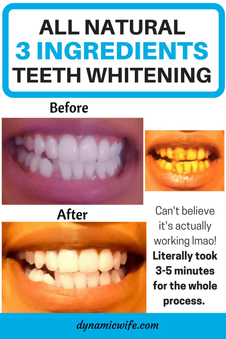 3 Minute Instant Teeth Whitening with 3 Natural Ingredients before/after