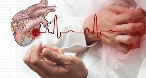 V případě srdečního infarktu máte deset vteřin na záchranu života. Co dělat?