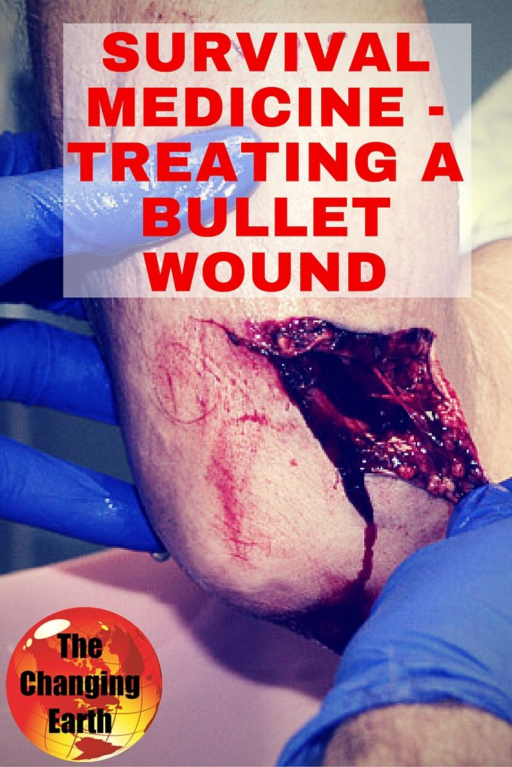 Dr. Ryan Chamberlin @ThePrepperPages discusses treating a #bullet wound in a #survival situation with Author Sara F. Hathaway after hearing how a character, Star, in her book, Day After Disaster, is in need of similar care.