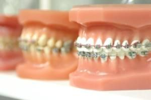 The Orthodontists Melbourne is a special field in the dentistry science.