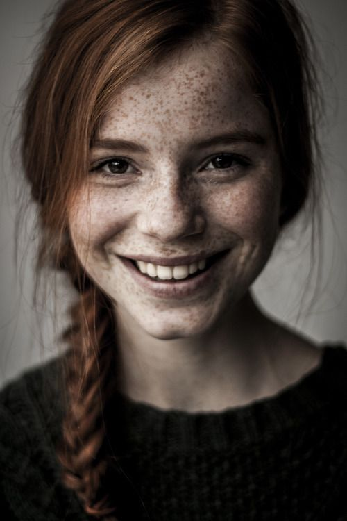 Freckles fascination