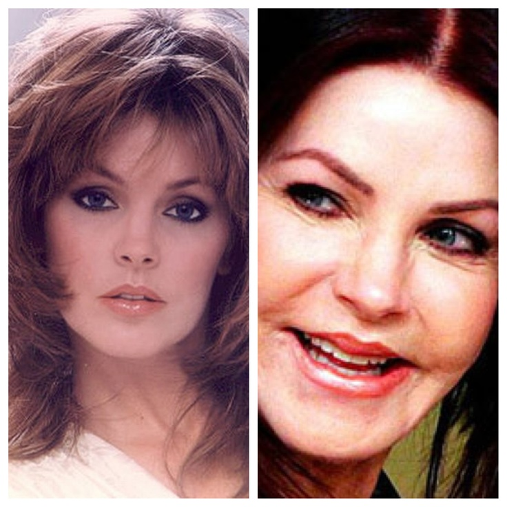 Priscilla Presley plastic surgery!  Elvis wouldn't recognize her because she looks like the Joker minus the green skin!