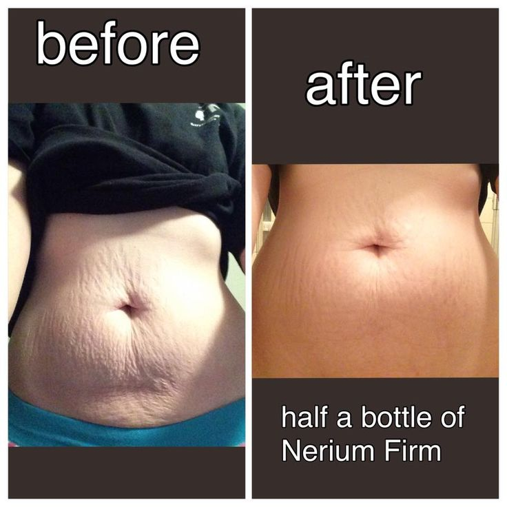This is Janelle Moye I think she's pretty thrilled with her results so far #stretchmarks #nerium #results