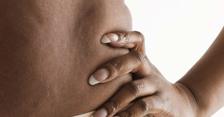 Tratamento caseiro para celulite. A celulite é uma infecção bacteriana da pele. Ela causa irritação e deixa a pele vermelha, flácida e inchada. É importante procurar um tratamento rapidamente, pois essa infecção tem potencial de entrar na corrente sanguínea e se espalhar pelo corpo. Essa condição é causada pela entrada da bactéria em uma fenda ou abertura na pele. As duas ...