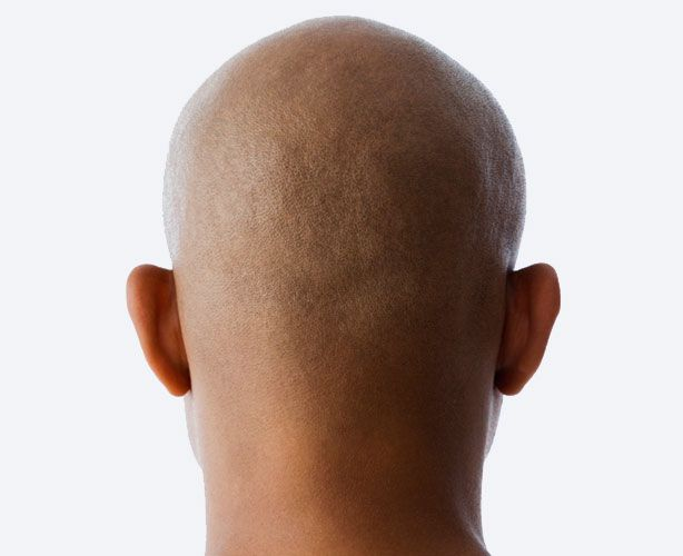 how to get rid of bald spots on scalp