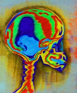 Skull Xray  Mind Rainbow by 1stanimal-artdesigncolour at zippi.co.uk
