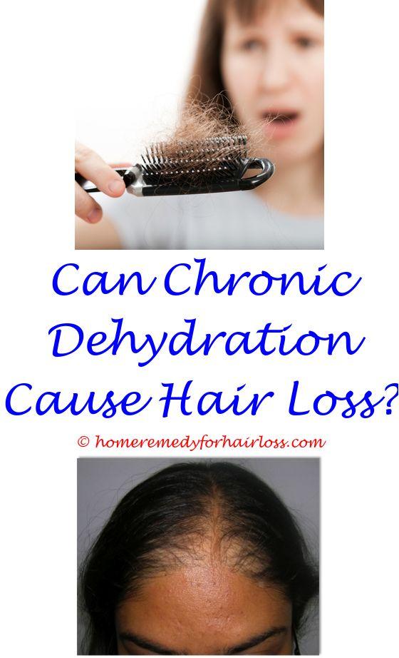 hyperthyroid symptoms and hair loss - does rheumatoid arthritis cause hair loss.hyperthyroidism cause hair loss how to stop hair loss and regrow hair naturally caffeine kalonji oil for hair loss in urdu 1654650412
