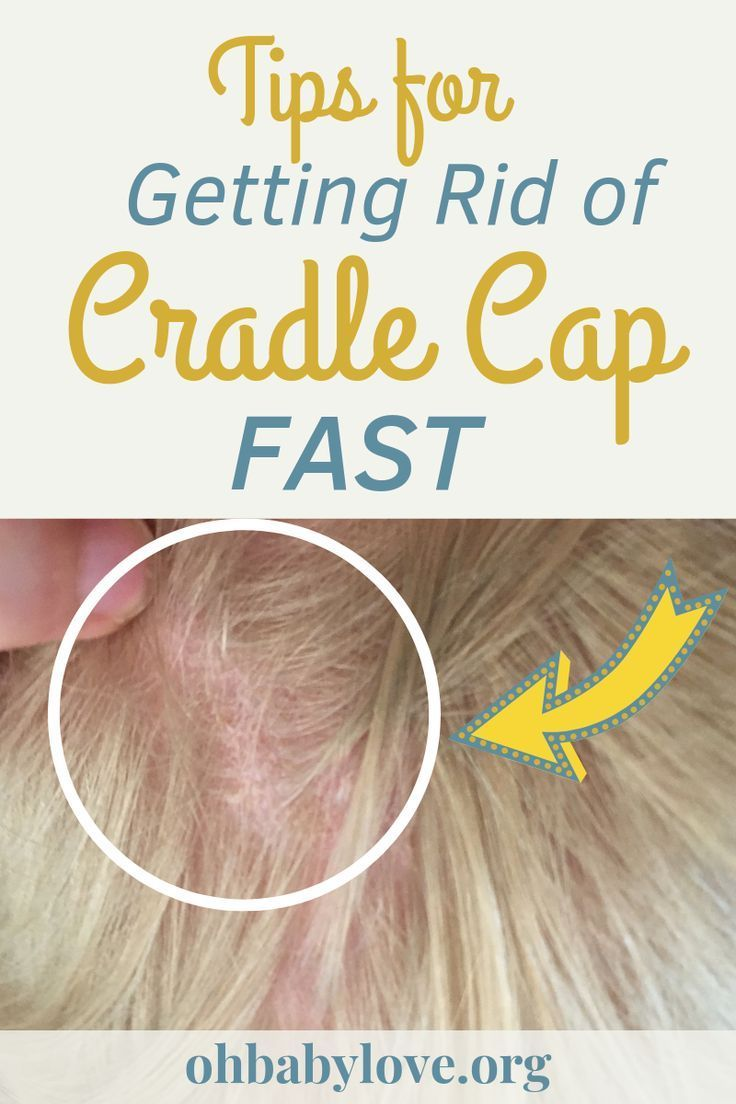 3a3884f30ccaad971f18a525d71ce8df - How To Get Rid Of Dandruff In Baby Hair