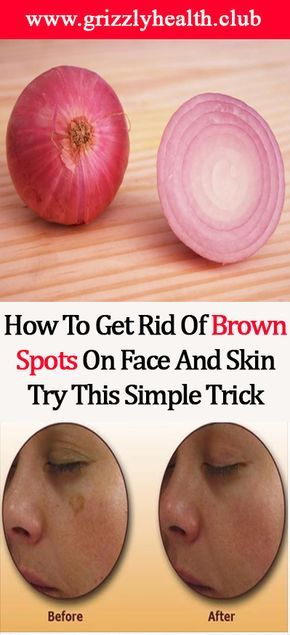 You will notice the first results in 7 days, but we recommend you to proceed with the treatment until you eliminate all the brown spots on the skin. Fresh onion juice is very beneficial and it has been used for many centuries to heal scars on the skin and because onions are rich in antioxidants …