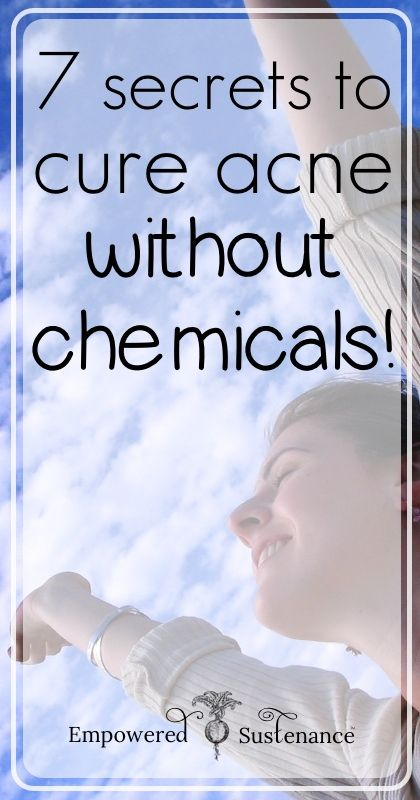 7 Secrets to Cure Acne without Chemicals - Empowered Sustenance