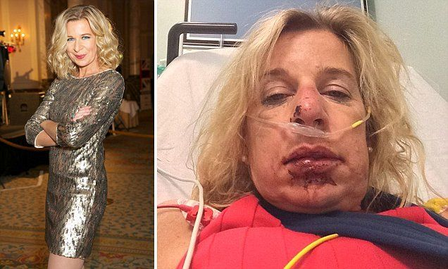 KATIE HOPKINS: The flashes of kindness that gave me hope for us yet