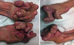 Untreated seropositive rheumatoid arthritis of the hands