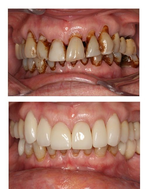 17 best ideas about smile makeover on pinterest perfect