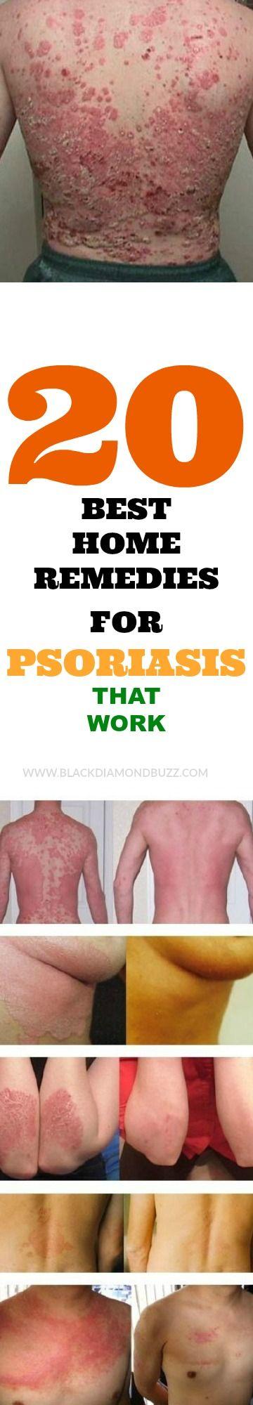 20 Best  Home Remedies For Psoriasis That Work.   #Psoriasisdiet #psoriasis #scalpposriasis #healingporiasis #homeremedies #naturalremedies #alternativemedicine