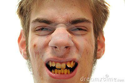 Gele tanden (en puisten)... hmmmm!