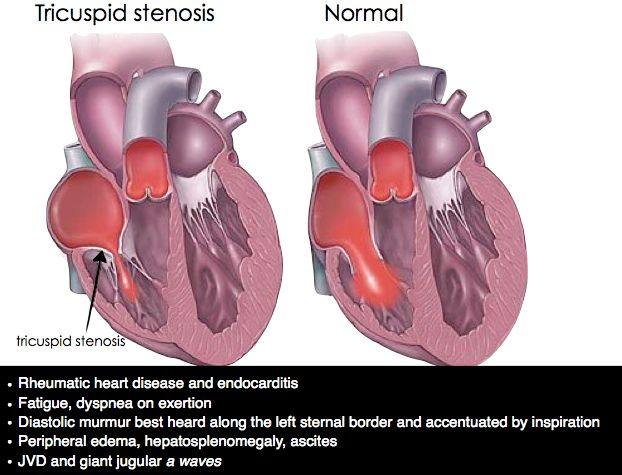 Tricuspid valve stenosis (TS) is mostly caused by rheumatic heart disease and is typically associated with other valvular involvement. TS can also be caused by the carcinoid syndrome and certain connective tissue diseases. Secondary causes of TS (e.g., tumors, thrombi) can also precipitate TS. Clinically, patients may be dyspneic with activity. There is jugular vein distention with a large a wave, indicating atrial contraction against a stiff tricuspid valve.