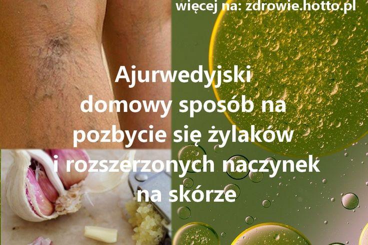 zdrowie-hotto-pl-domowy-sposob-na-zylaki-jak-sie-pozbyc-zylakow-naturalnie-ajurwedyjska-metoda