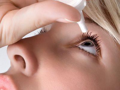 Sindromul de ochi uscat (Keratita sicca)