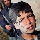 Crying Boy, An Afghan boy cries after being injured by a crowd entering a school in Jalrez, Afghanistan during an Afghan Medical Personnel Skills Improvement Mission (AMPSIM) on Nov. 13, 2009. The crowd consisted of more than 300 people attempting to obtain dire medical aid, clothing, winter supplies, and much needed groceries. The boy was rescued from the crowd by a local Afghan National Police officer.
