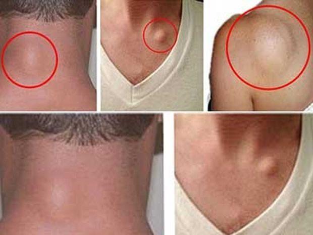Vous avez une boule de graisse souple sous la peau, essayez ces trois remèdes naturels pour la faire disparaître !