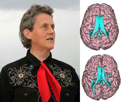 Temple Grandin, perhaps the world's most famous person with autism, has exceptional nonverbal intelligence and spatial memory, and her brain has a host of structural and functional differences compared with the brains of controls, according to a presentation Saturday at the 2012 Society for Neuroscience annual meeting in New Orleans.