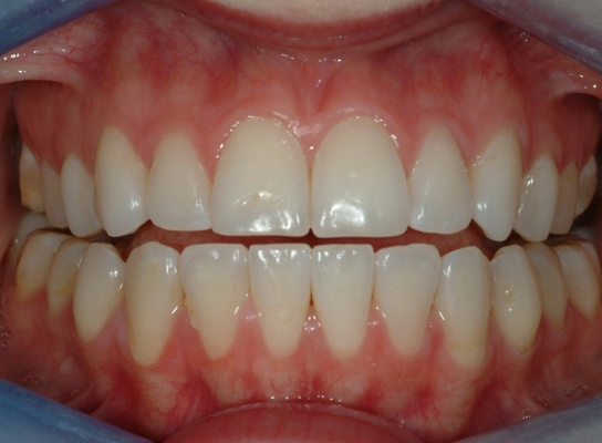 Minimally invasive dentistry:  Before treatment patient with anterior open bite.