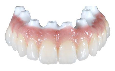 Vollkeramische Implantatbrücken aus dem Material Zirkon eignen sich hervorragend für die biokompatible implantat-prothetische Reahbilitation mit Zahnersatz