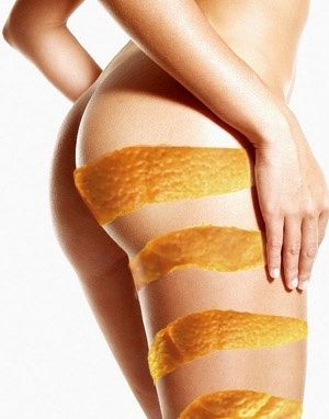 Cellulite — Get Rid Of It Now – Everything You Need To Know: