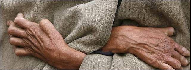 Lepra o Enfermedad de Hansen. Cada año se registran en España de 15 a 20 nuevos casos.