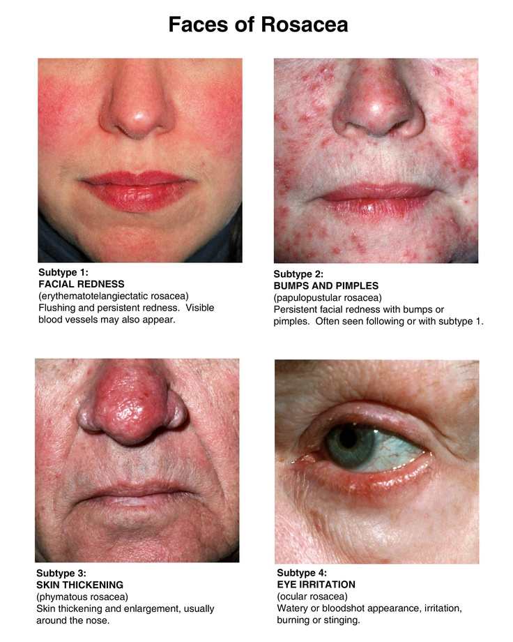 Erythematotelangiectatic Rosacea Natural Treatment
