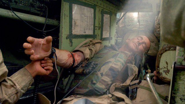 photojournalist in iraq | US soldier receiving treatment in Iraq