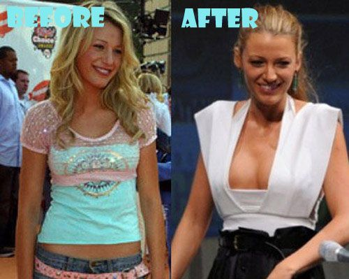 E Breast Implants Before And After Best 25+ Blake Lively ...