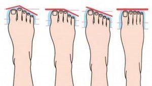 Koop niet te krappe schoenen. Je voeten zullen je dankbaar zijn. www.neefjespedicure.nl