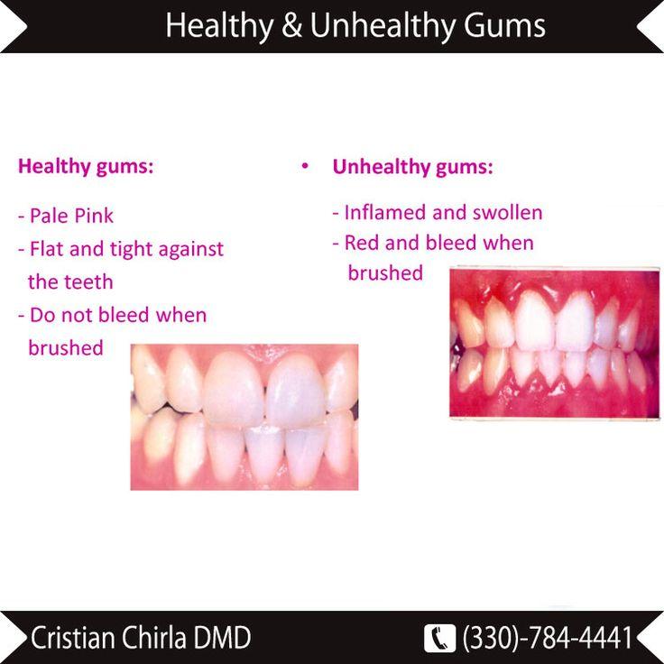 #Healthy vs #Unhealthy #Gums | Cosmetic dentistry, Dentist ...