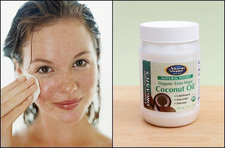 Coconut oil acts as an antibacterial shield Theantibacterial properties of coconut oil protect the skin from potential pathogens. More importantly, it can reduce the risk of bacterial infections worsening acne. It is mainly thelauric acid in the coconut oil that acts as the antibacterial agent. This medium chain fatty acid constitutes 85% of the coconut oil. The only other natural substance high in lauric acid…   [read more]