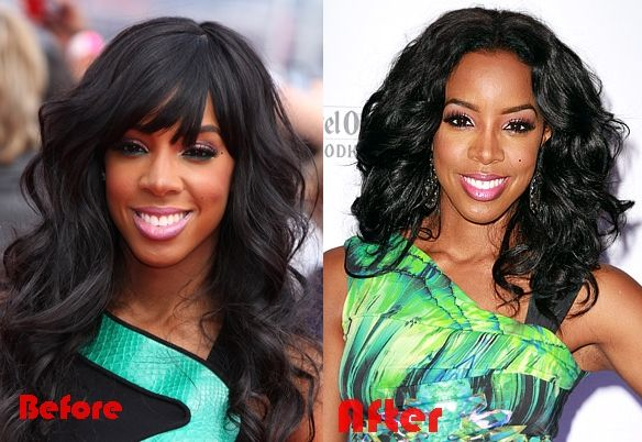 kelly rowland nose job surgery before and after photos