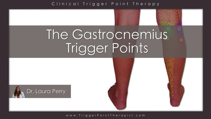 Gastrocnemius Trigger Points: The Calf Cramp Trigger Points | TriggerPointTherapist.com