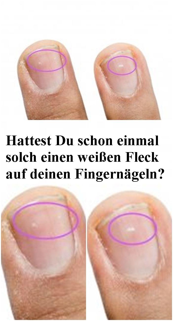 Hattest Du schon einmal solch einen weißen Fleck auf deinen Fingernägeln? Dann…